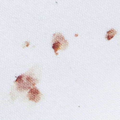 Bed bug blood stain pictures